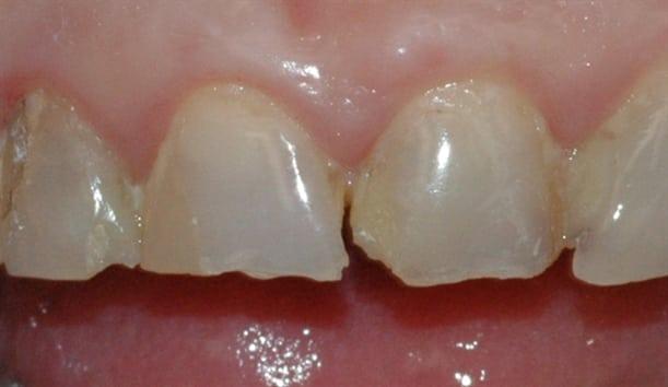 Bildet viser fortenner med utette fyllinger, frakturer og slitasjeskader som følge av tanngnissing.