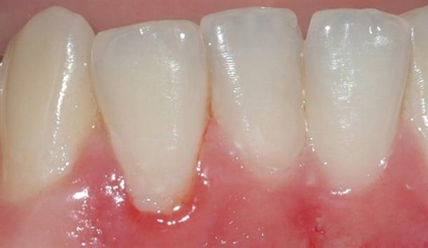 Bildet viser belegg langs tannkjøttet på en fortann i underkjeven. Tannkjøttet er noe rødt og hovent.