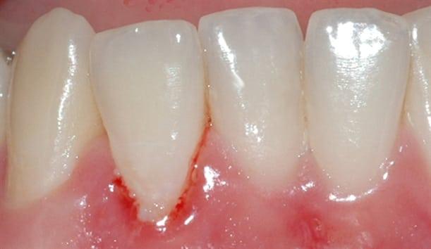 Når man berører tannkjøttet, begynner det lett å blø.