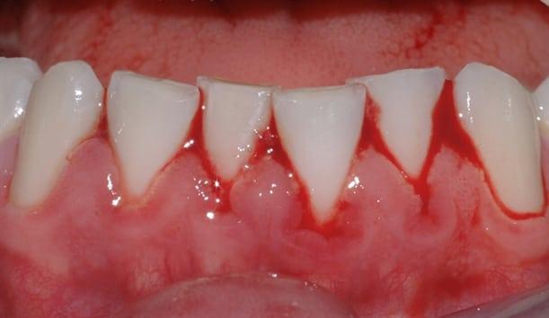 Tannkjøttet blør kraftig når pasienten pusser tennene. Ved godt renhold over tid, vil betennelsen forsvinne.