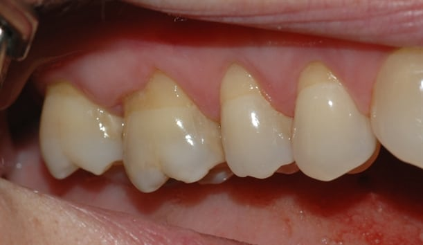 Bildet viser hvordan tannkjøttet over tid har trukket seg tilbake som følge av for hard tannbørsting.