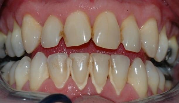 Bildet viser et tannsett med synlig tannsten og misfarging.