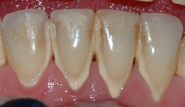Bildet viser et nærbilde av tennene i underkjeven med tannsten og misfarging.