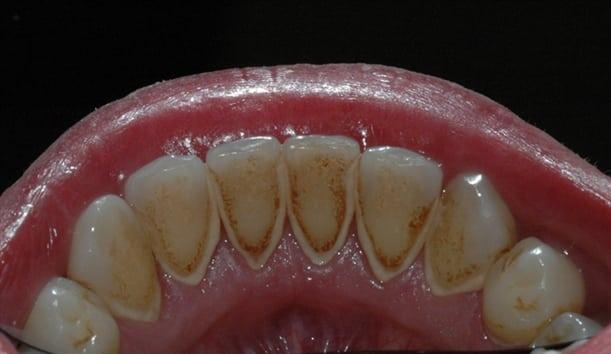 Her kan man se misfarging og tannsten på tennenes innside.