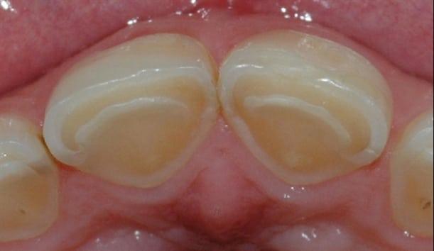 På baksiden av tennene er store deler av emaljen etset bort.
