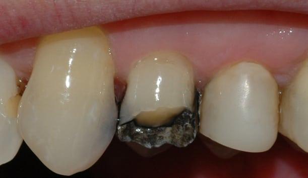 Bildet viser at en tyggeknute til en tann i overkjeven har frakturert. Tannen var svekket på grunn av en stor amalgamfylling.
