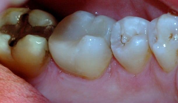 Den gjenstående amalgamfyllingen ble fjernet, og tannen ble bygget opp igjen med en plastfylling.