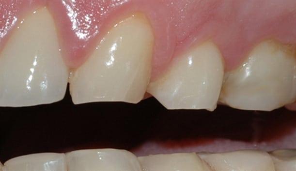 Et nærbilde viser rette, slitte kanter på tennene.