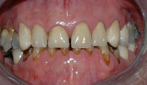 Bildet viser et eksempel på alvorlig tanngnissing.