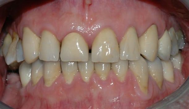 Slik fikk pasienten tilbake en normal bittfunksjon, og et penere tannsett.
