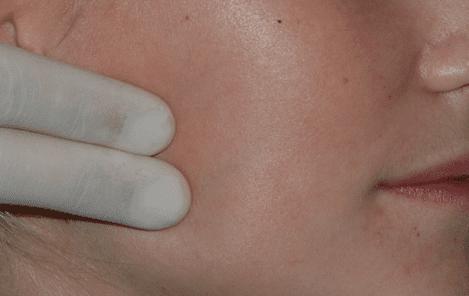Kjeveledd og tyggemuskulatur kontrolleres også. Dette er spesielt viktig dersom pasienten er plaget med tanngnissing og spenningshodepine