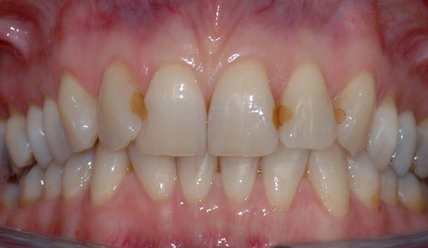 Bildet viser tenner i overkjevens front med diverse synlige fyllinger. Pasienten ønsket å bytte fyllingene da de virket skjemmende i et ellers pent smil.