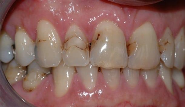 Bildet viser tenner med diverse synlige fyllinger. Flere av fyllingene er dårlig tilpasset og har hull i kantene.